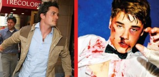Orlando Bloom Justin Bieber Fight