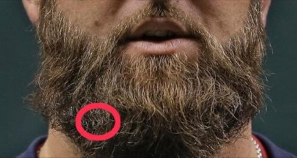 Как сделать чтоб борода была густая