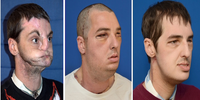 face transplant main