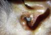 maggots in ear