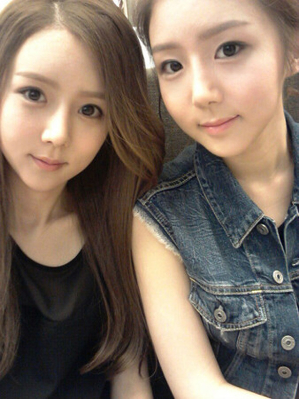 korean twin sisters plastic surgery