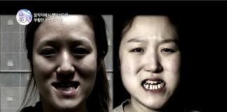 korean twin sisters plastic surgery