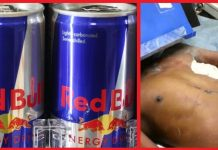 flail-chest-red-bull